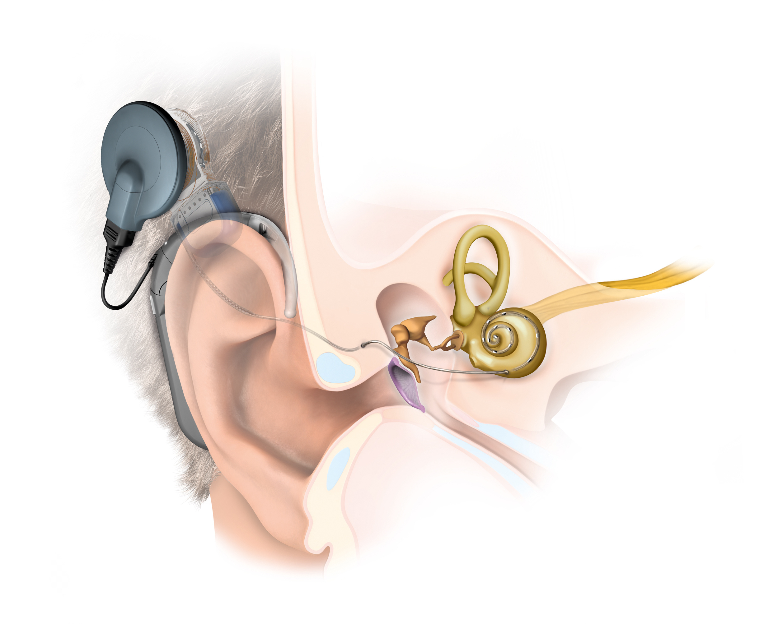 cochlear vs proteome systems limited They also receive limited benefit from traditional hearing aids if the patient is a candidate for a bone anchored system or a cochlear implant.